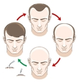 Stages of hair loss treatment and transplantation vector image