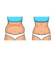 female belly fat loss plastic surgery abdomen vector image