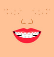 smile with dental braces vector image vector image