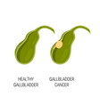 healthy and cancer gallbladder concept vector image vector image