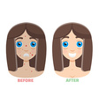 laser peeling before after vector image vector image