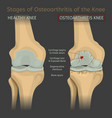 stages of osteoarthritis of the knee vector image vector image