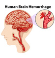 Diagram of human brain hemorrhage vector image