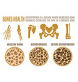 osteoporosis stages image vector image vector image