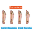 Types of fractures vector image