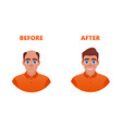 hair growth concept vector image