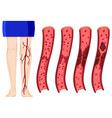 Blood clot in human legs vector image vector image