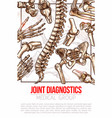 medical poster for joint diagnostics vector image vector image