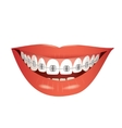 smiling mouth with braces isolated vector image