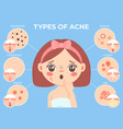 girl with acne young unhappy female face vector image vector image