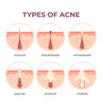 acne types anatomy pimple diseases sectional view vector image vector image