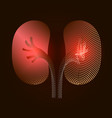 kidneys with a point of pain stylized transition vector image