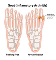 Diagram explanation of Gout in human foot vector image