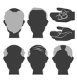hair loss2 vector image