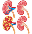 Diagram of kidney with disease vector image vector image