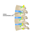 a hernia of the intervertebral disc vector image vector image