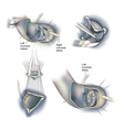 Heart surgery valve replacement vector image vector image
