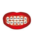 braces on the teeth infographics vector image