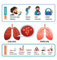 lung infographic cartoon style vector image