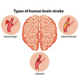 Types of human brain stroke vector image vector image