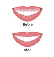 mouth with a high smile line or gummy smile before vector image vector image
