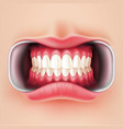 dental braces oral brakets system 3d vector image
