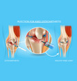 injection for knee osteoarthritis medical chart vector image vector image