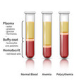 blood analysis infographic vector image