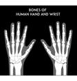 Bones of human hands and wrists vector image