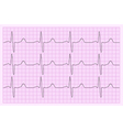 Heart analysis electrocardiogram graph ECG