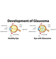 Development of Glaucoma in human eyes vector image vector image
