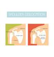 a healthy shoulder and dislocation vector image