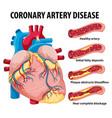 coronary artery disease for health education