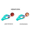 hematuria blood in urine vector image vector image