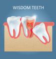 wisdom teeth problems poster design vector image vector image