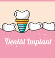 dental implant tooth and gum inside mouth vector image