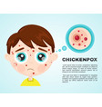 little boy kid face sick chickenpox vector image vector image