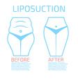 Liposuction before and after infographics vector image