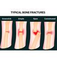 bone fractures vector image vector image