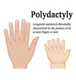 polydactyly vector image