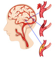 Caner in human brain vector image vector image