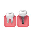 dental implants prosthetics 3d realistic style vector image vector image