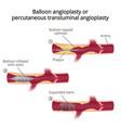 balloon angioplasty vector image vector image