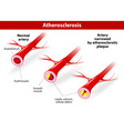 Atherosclerosis vector image vector image