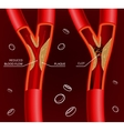 Blood Vein Image vector image vector image