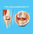 injured knee joint with torn meniscus chart vector image