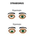 strabismus hypertropia hypotropia vector image vector image