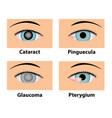 cataract pinguecula glaucoma and pterygium eye vector image