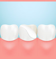 dental veneers on a human tooth isolated on a vector image vector image