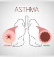 asthma icon vector image